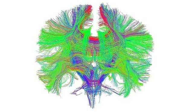 THC Increases Neural Noise in Brain Similar to Schizophrenia